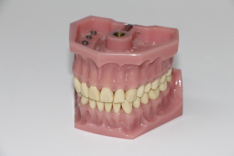 アタッチメントの意味とは?心理学/歯科/重機での使い方は?例文も!